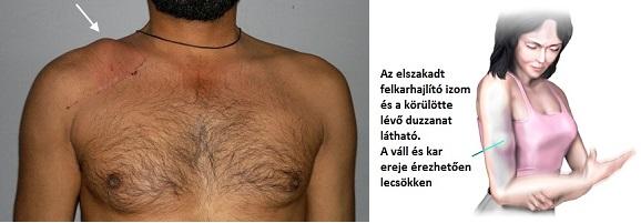 vállízület és duzzanat)
