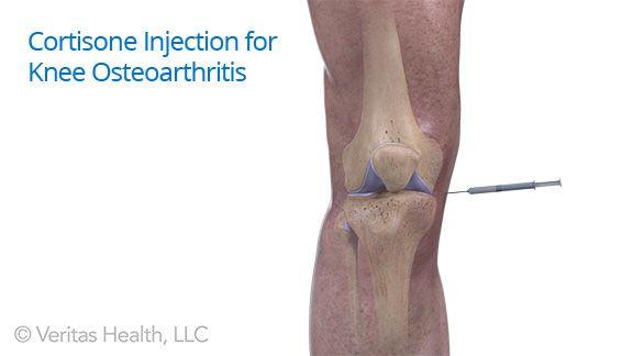 gyógyszerek csontritkulás és osteoarthrosis kezelésére