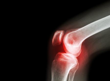 térd fájdalom lelki okai kínai medicina