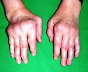 izületi betegségek ízületi fájdalom minden nap