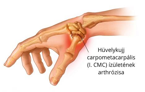hüvelykujj a kézízületi fájdalom