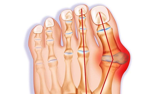 ízületi gyulladás a második lábujj kezelésénél)