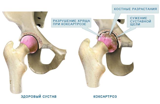 A csípőízület deformáló artrózisának osztályozása