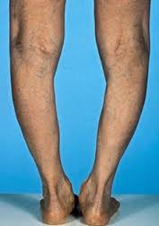 A lábkötések típusai - Térd
