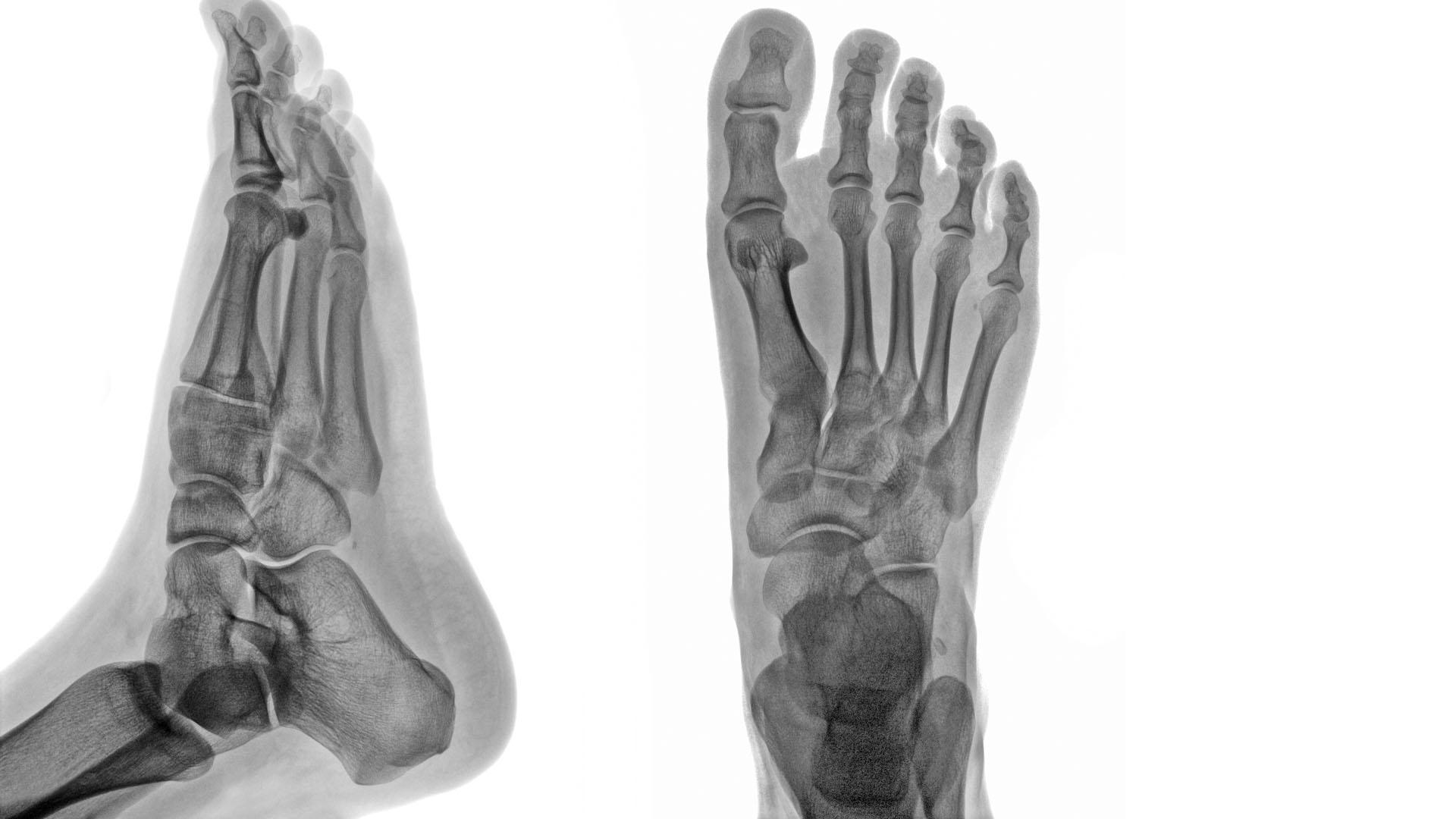 borostyánkősav kezelés az artrózisban