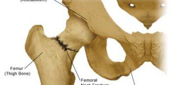 hosszú sétáláskor a csípőízület fáj térdfájdalom éjjel okoz