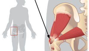 csípőízületi fájdalmak okai hogyan lehet megszabadulni az ízületi gyulladásról