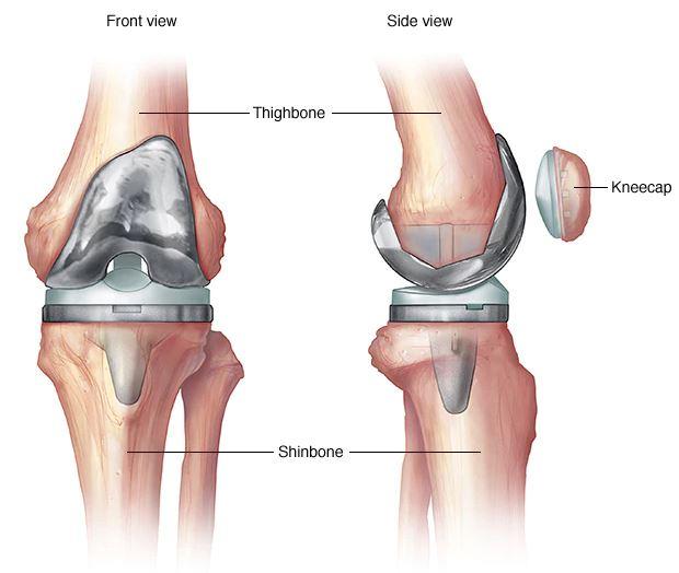 térdízületi fájdalom a protézisek után