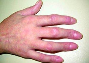 szisztémás kötőszöveti betegségek kezelése)