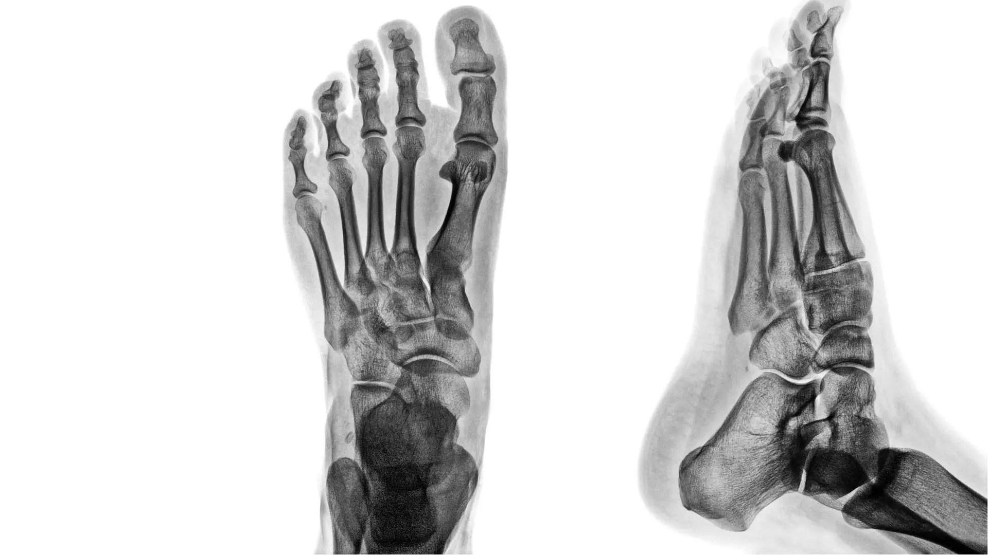 láb metatarsalis arthritis