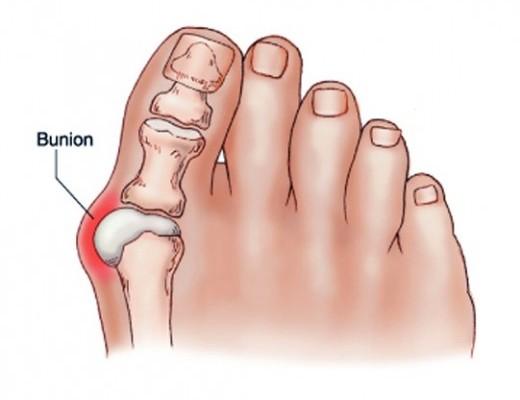 nagy lábujj ízületi fájdalma és duzzanata)