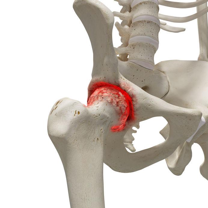csípőízület artrózisa 3 fokos kezelés