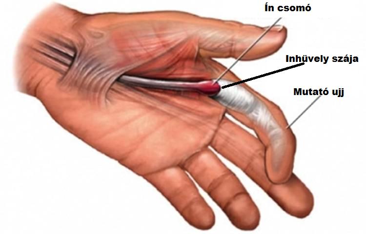Pattanó ujj - Mire utal a pattanó hang az ujjak mozgatásakor? - buggarage.hu
