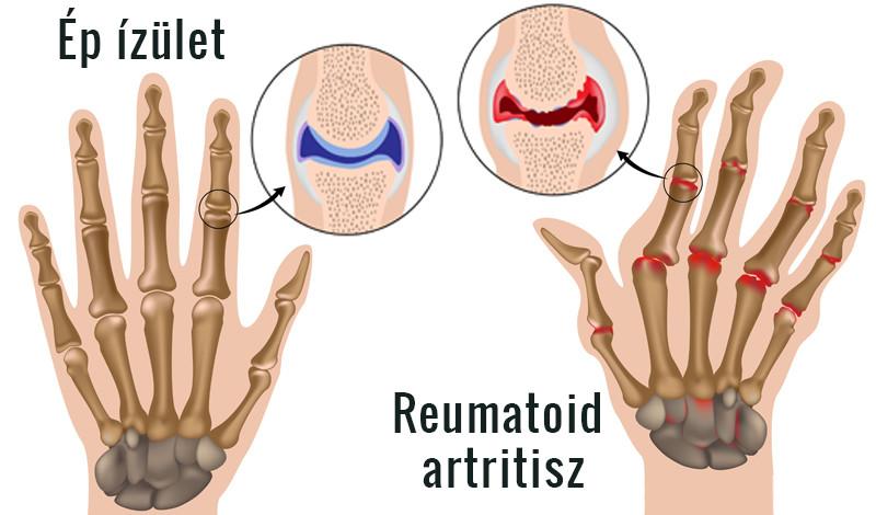 ízületi károsodás rheumatoid arthritis kezeléssel)