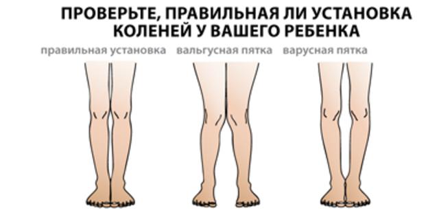 Térdfájdalom tünetei, okai, jelei, megelőzése - Térdfájdalom kezelése, gyógyítása - buggarage.hu
