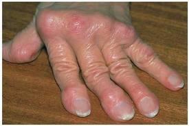 milyen gyógynövényeket igyon a csípőízület osteoarthritisével