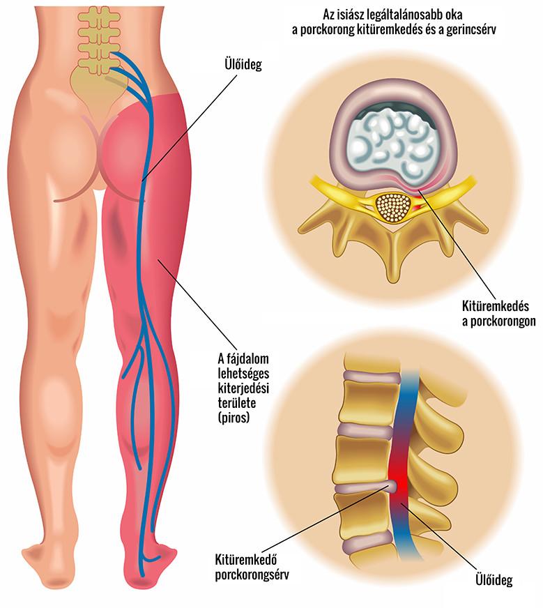 fáj a csípőízület a gerincről