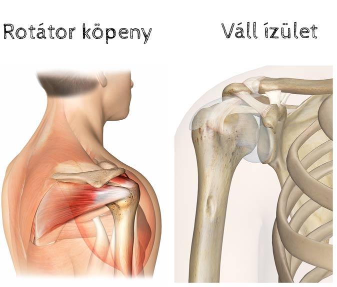 testépítés váll fájdalom ízület ízületi töredékek kezelése