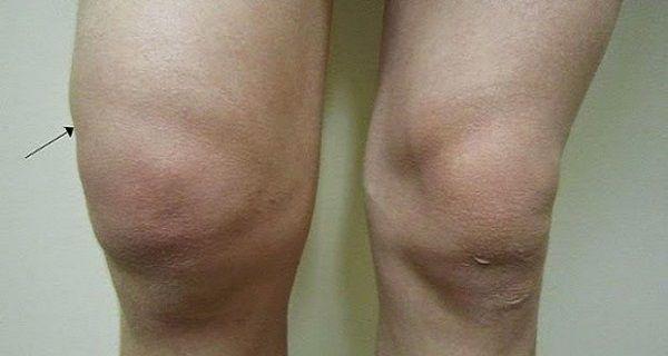 ízületi parrezis kezelése
