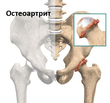 Csípőízületi diszplázia: jelek, tünetek és kezelés | buggarage.hu