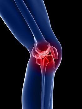 A térdízület arthrosisának deformálása - Homorú-domború lencse