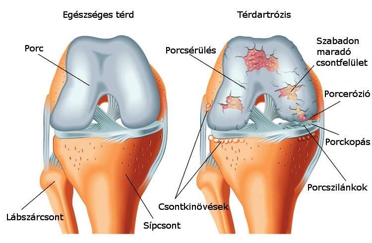 térdízületi szalag sérülései