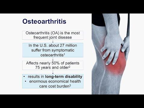 Deformáló artrosis a láb milyen kezelés, Hormon ízületi fájdalom