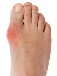közös gyulladásgátló gyógyszerek áttekintése könyökfájdalom kéz zsibbadás