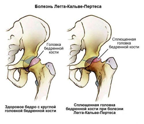 a csípőízület fájdalmas fájdalmainak oka