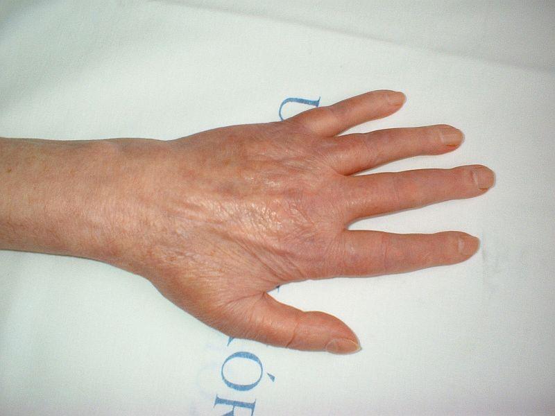 térd tünetek rheumatoid arthritis
