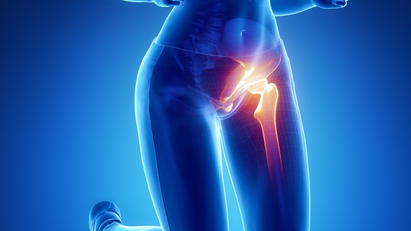 hogyan lehet kezelni a csípő és a térd artrózisát)