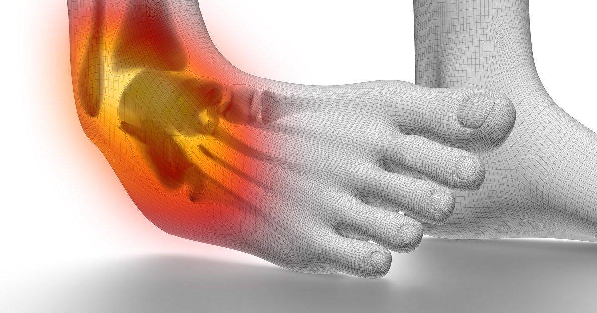 boka fájdalom kezelése)