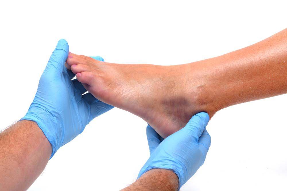 lábízület sérülés kezelése amiben az ujjak ízületei fájhatnak