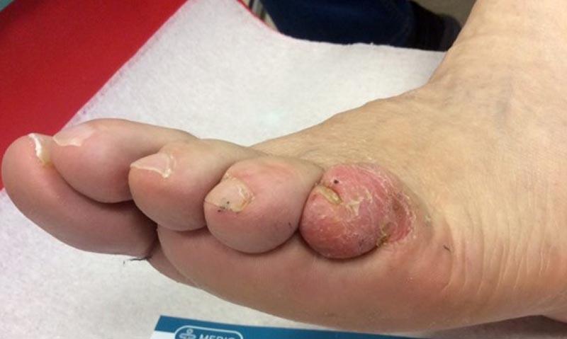 lábujjak közötti kipállás