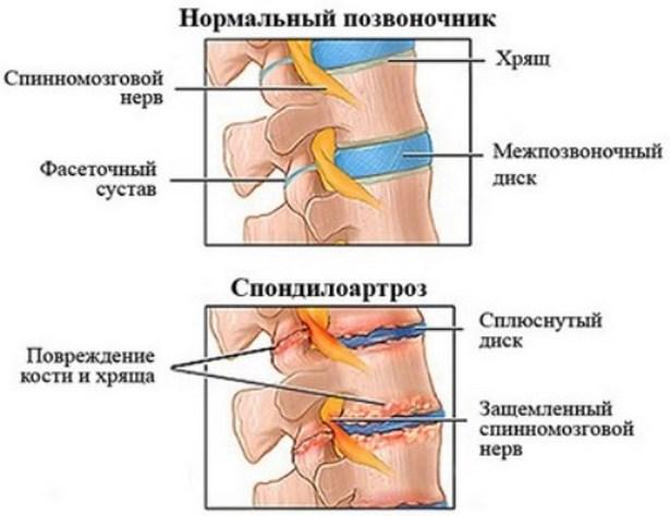 Injekciók az ízületek kezelésére intramuszkulárisan