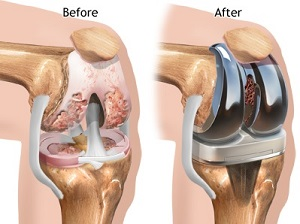 térdízület artrózisos kezelése diprospannal)