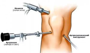 meg lehet-e állítani a csípőízület artrózisát
