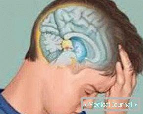 ízületi fájdalom hypophysis adenómával