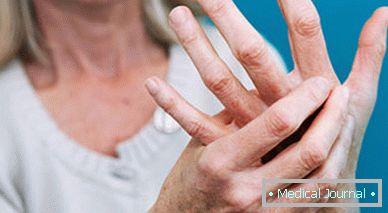 az ujjak ízületi deformációja