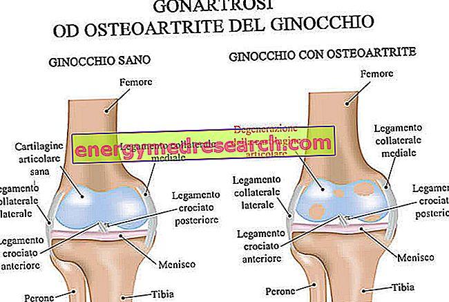 ahol a térd osteoarthritist kezelik)
