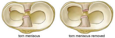 Meniscus műtét - Artroszkópos térdműtét - Medicover