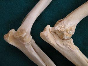 A gömb anatómiai képződményei. A gömb felépítése