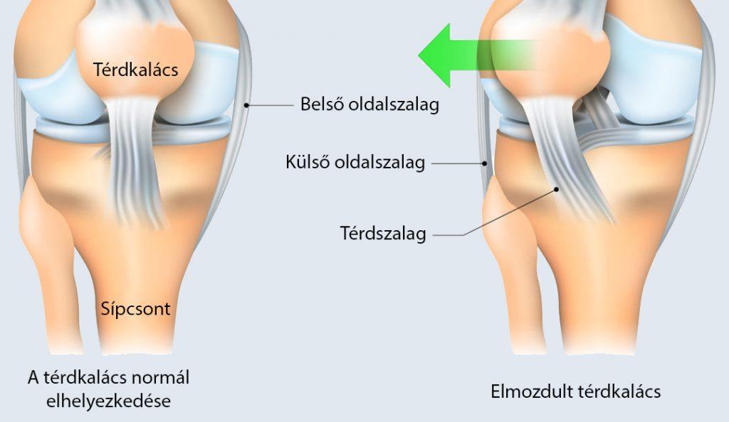 a tünetek elmozdulása és a térd kezelése