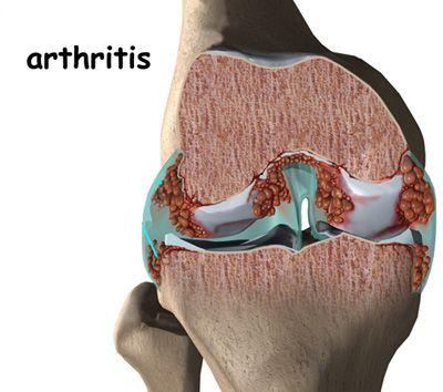 az ízületek gyulladásának okai a térd hatékony deformáló artrózisa