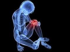 agyag kezelés artrózis