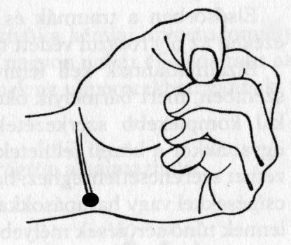 akupresszúra a térdízület fájdalmában lábujjak közötti kipállás