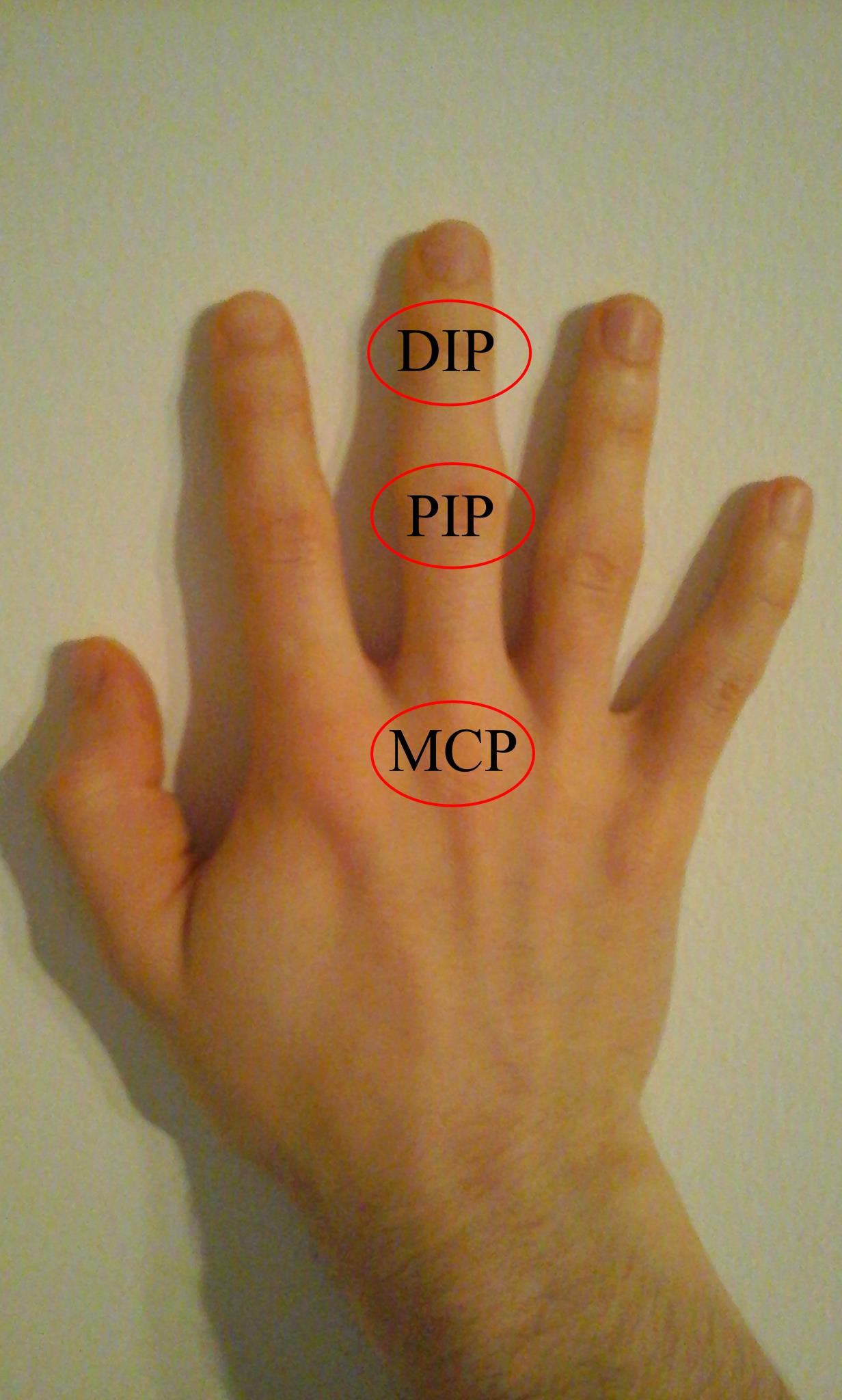 a középső ujj ízületének ízületi gyulladása)