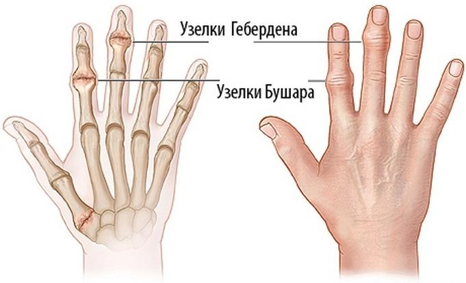 Kézközépcsont