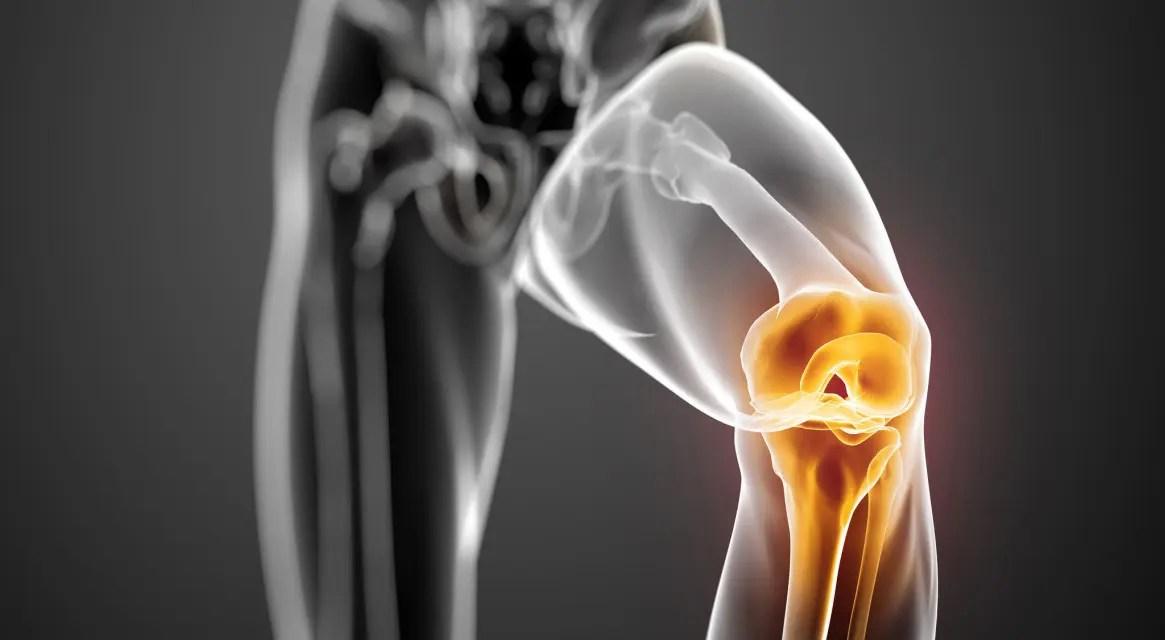 Térd meniszkusz: okok, károsodás tünetei és kezelés - Diszplázia