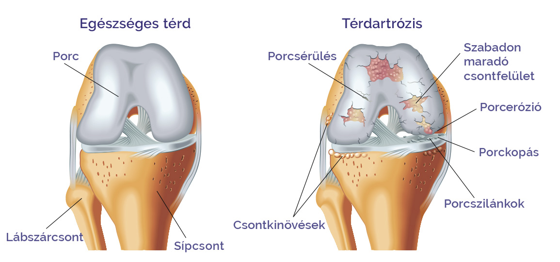 kinezoterápia térd artrózisához